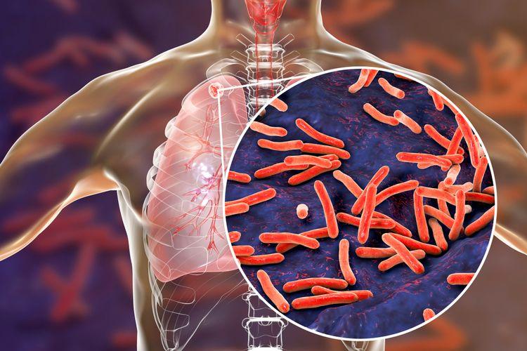 Ilustrasi penyakit Tuberculosis