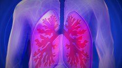Rokok Bisa Picu Kanker Paru-paru, Ini Penjelasannya